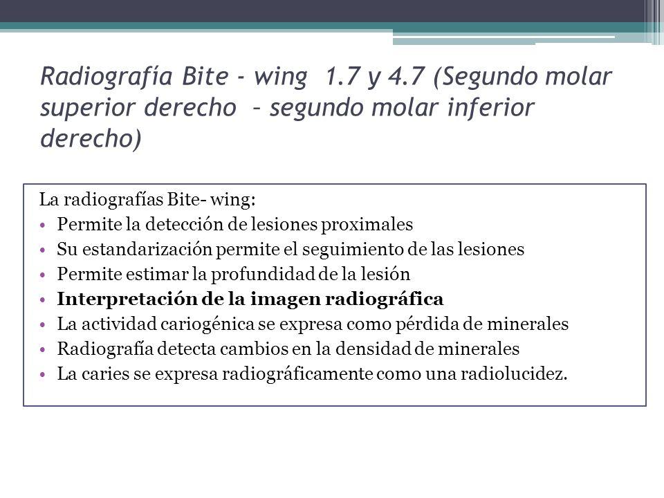 Radiografía Bite - wing 1. 7 y 4