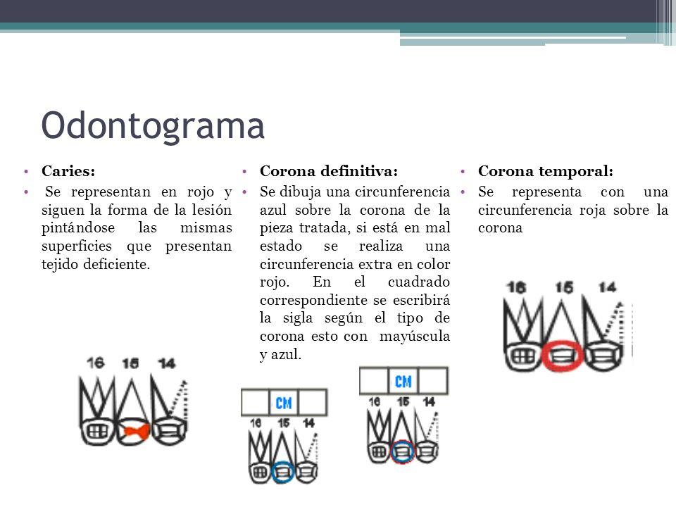 Odontograma Caries: Corona definitiva: Corona temporal: