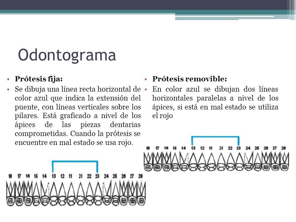 Odontograma Prótesis fija: Prótesis removible: