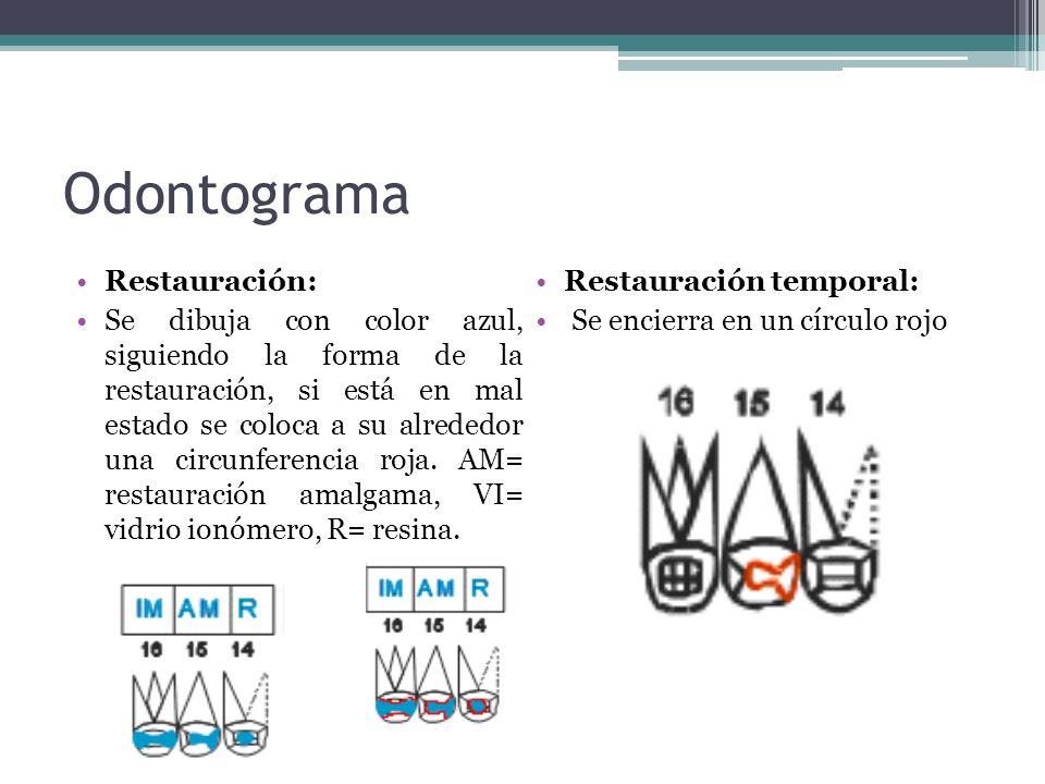 Odontograma Restauración: Restauración temporal: