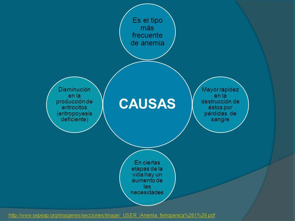 CAUSAS Es el tipo más frecuente de anemia