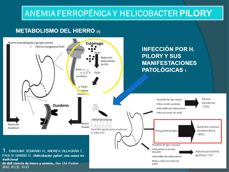 ANEMIA FERROPÉNICA Y HELICOBACTER PILORY
