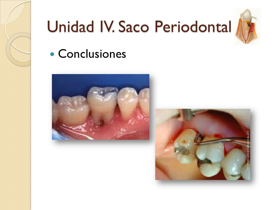 Unidad IV. Saco Periodontal