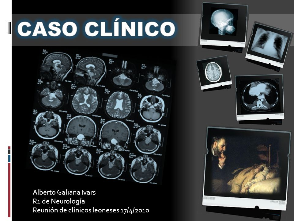 CASO CLÍNICO Alberto Galiana Ivars R1 de Neurología
