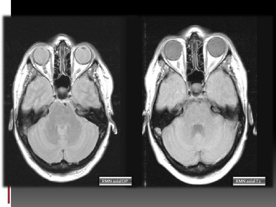 Presentación del caso ¿Neoplasia Consulta de Neurología