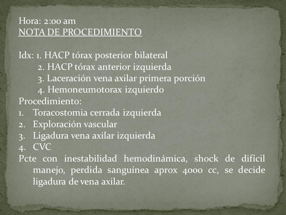 Hora: 2:00 am NOTA DE PROCEDIMIENTO. Idx: 1. HACP tórax posterior bilateral. 2. HACP tórax anterior izquierda.