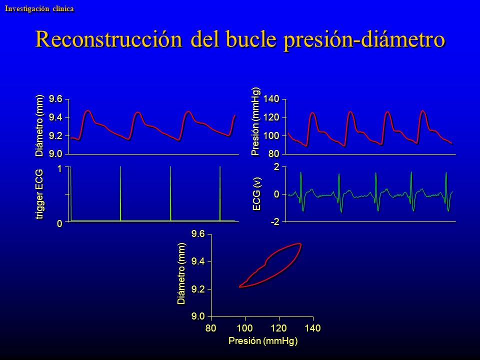 Reconstrucción del bucle presión-diámetro