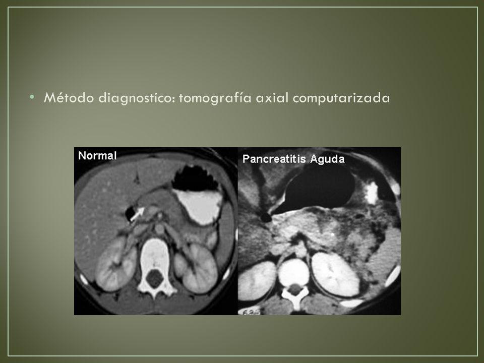 Método diagnostico: tomografía axial computarizada