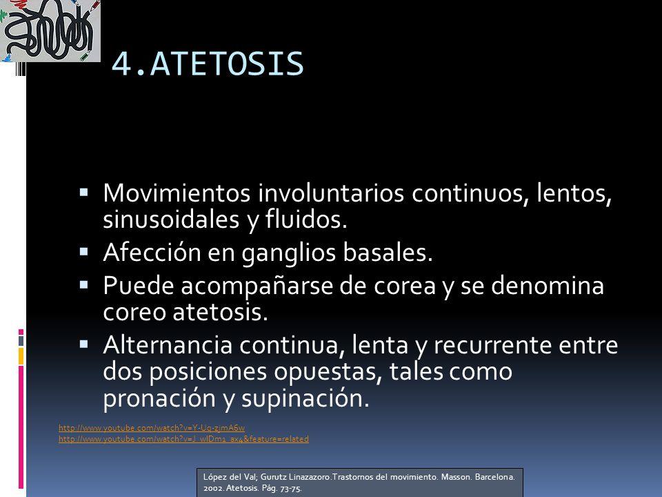4.ATETOSIS Movimientos involuntarios continuos, lentos, sinusoidales y fluidos. Afección en ganglios basales.