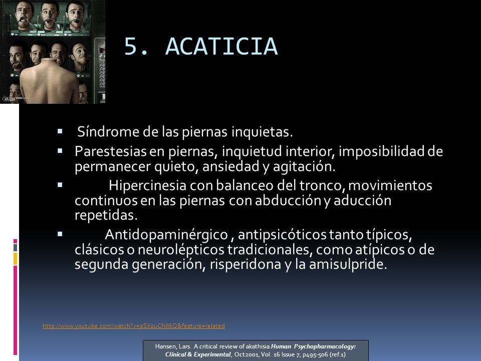 5. ACATICIA Síndrome de las piernas inquietas.