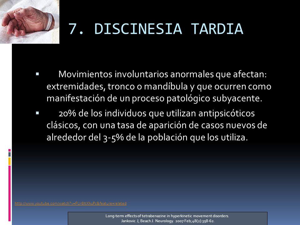 7. DISCINESIA TARDIA