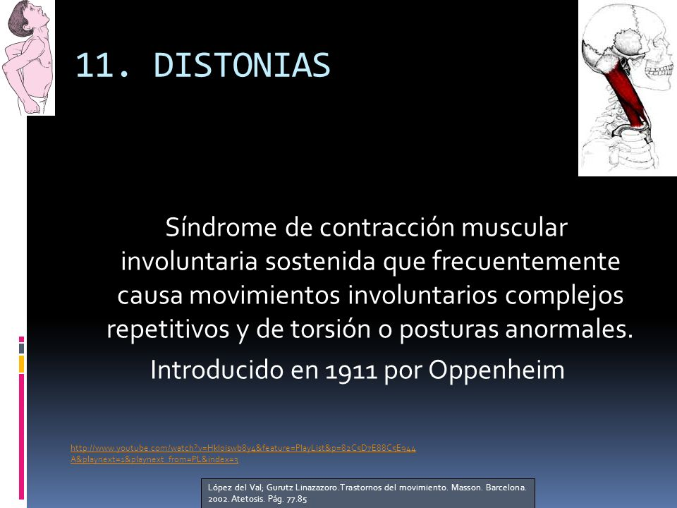 11. DISTONIAS