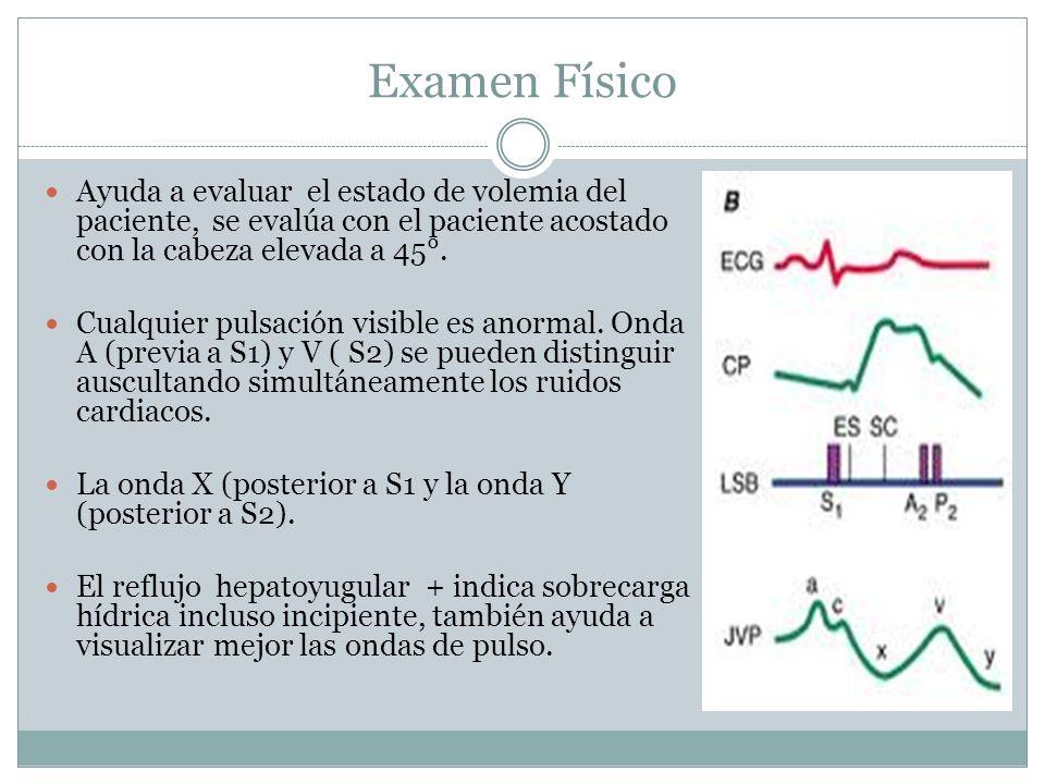 Examen Físico Ayuda a evaluar el estado de volemia del paciente, se evalúa con el paciente acostado con la cabeza elevada a 45°.