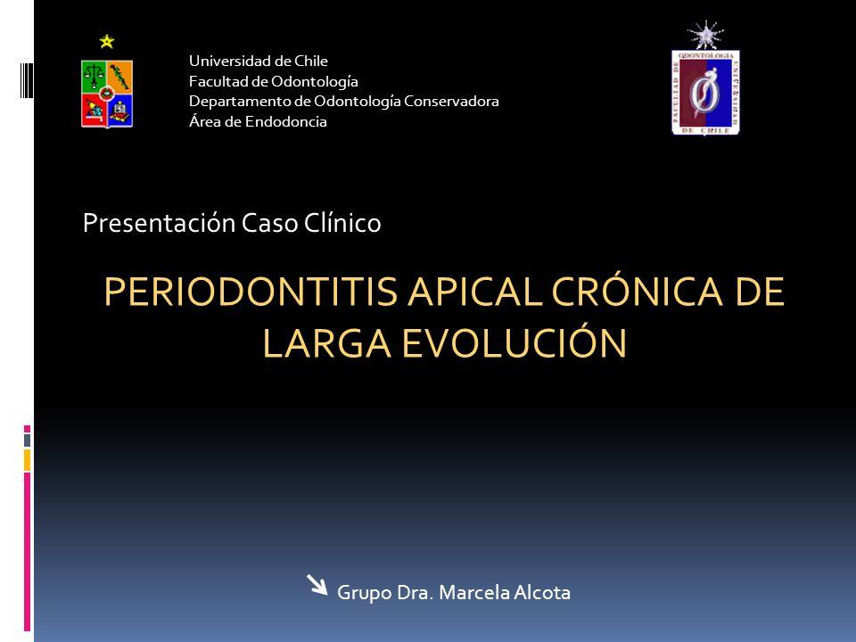 PERIODONTITIS APICAL CRÓNICA DE LARGA EVOLUCIÓN