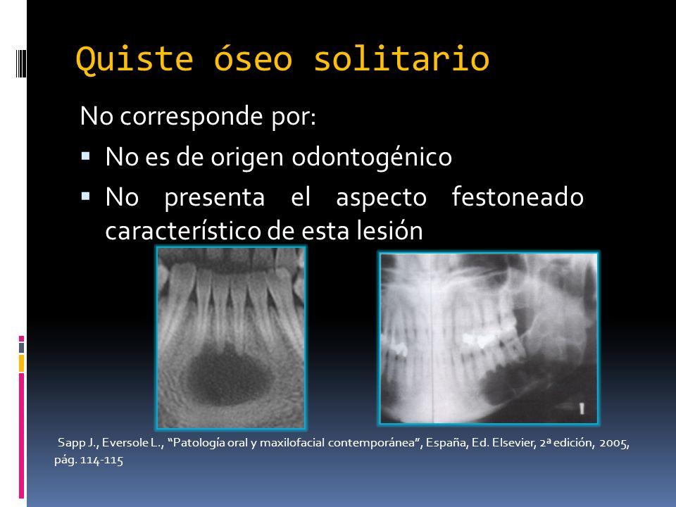 Quiste óseo solitario No corresponde por: No es de origen odontogénico