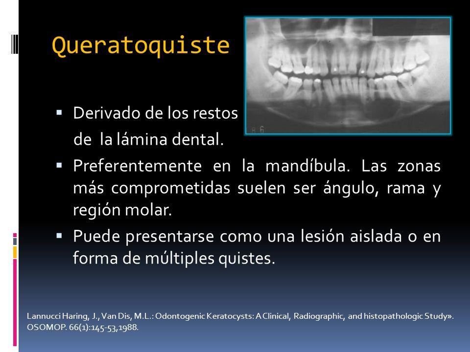 Queratoquiste Derivado de los restos de la lámina dental.