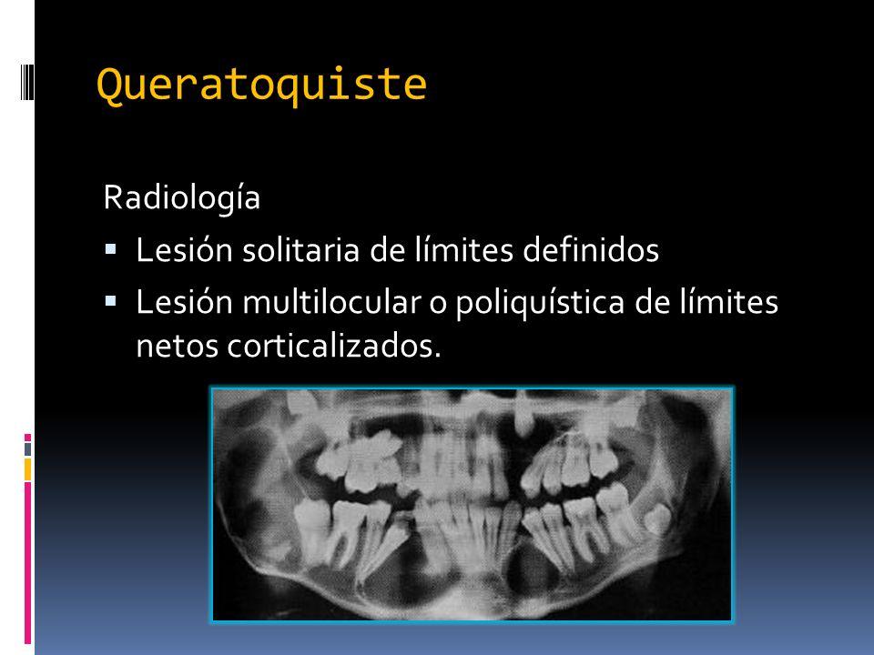 Queratoquiste Radiología Lesión solitaria de límites definidos