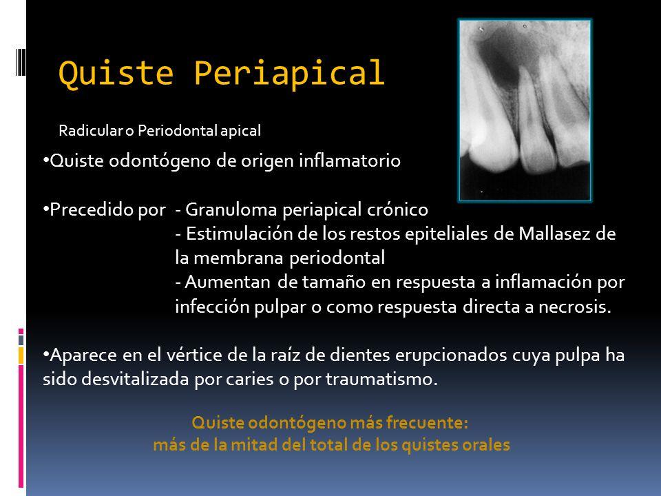 Quiste Periapical Quiste odontógeno de origen inflamatorio