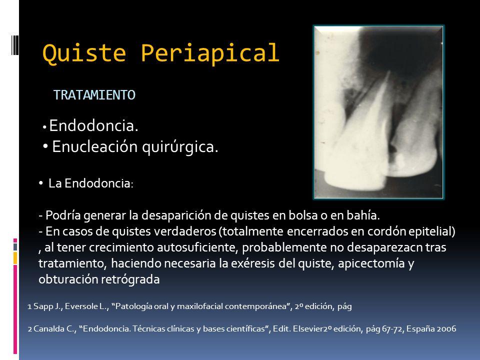 Quiste Periapical Enucleación quirúrgica. TRATAMIENTO La Endodoncia: