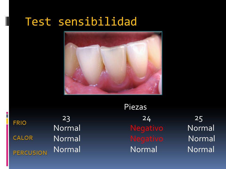 Test sensibilidad Piezas 23 24 25 Normal Negativo Normal Normal Negativo Normal Normal Normal Normal