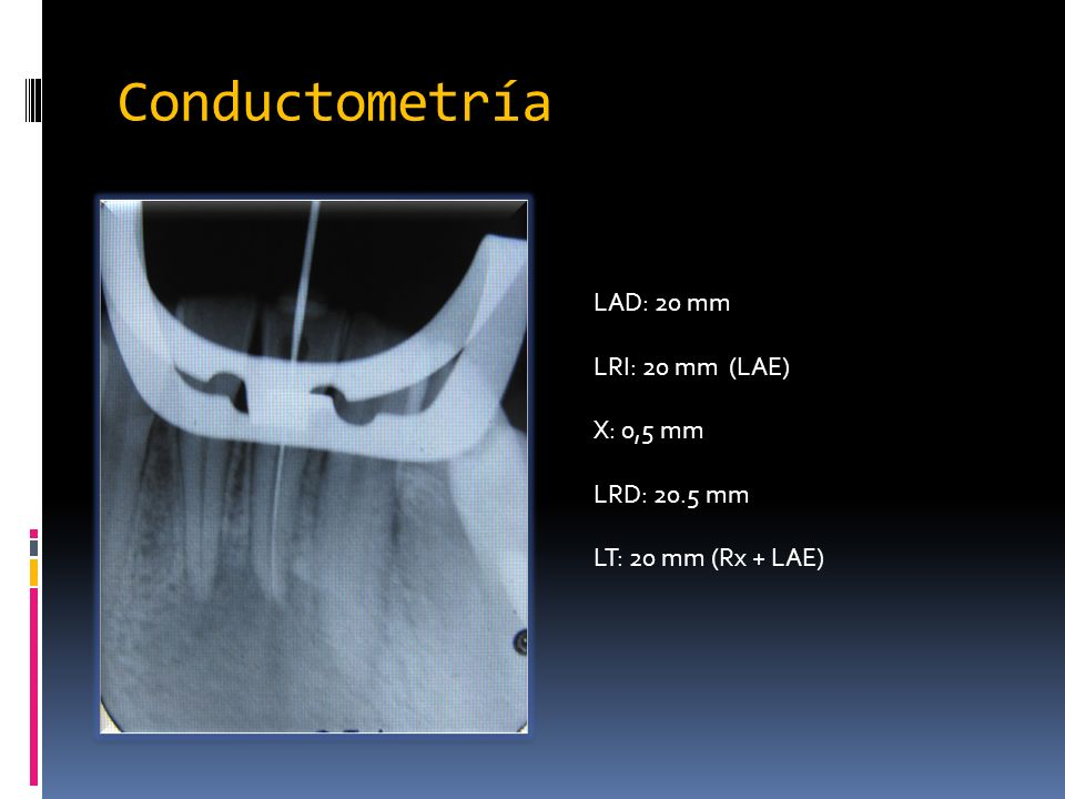 Conductometría LAD: 20 mm LRI: 20 mm (LAE) X: 0,5 mm LRD: 20.5 mm
