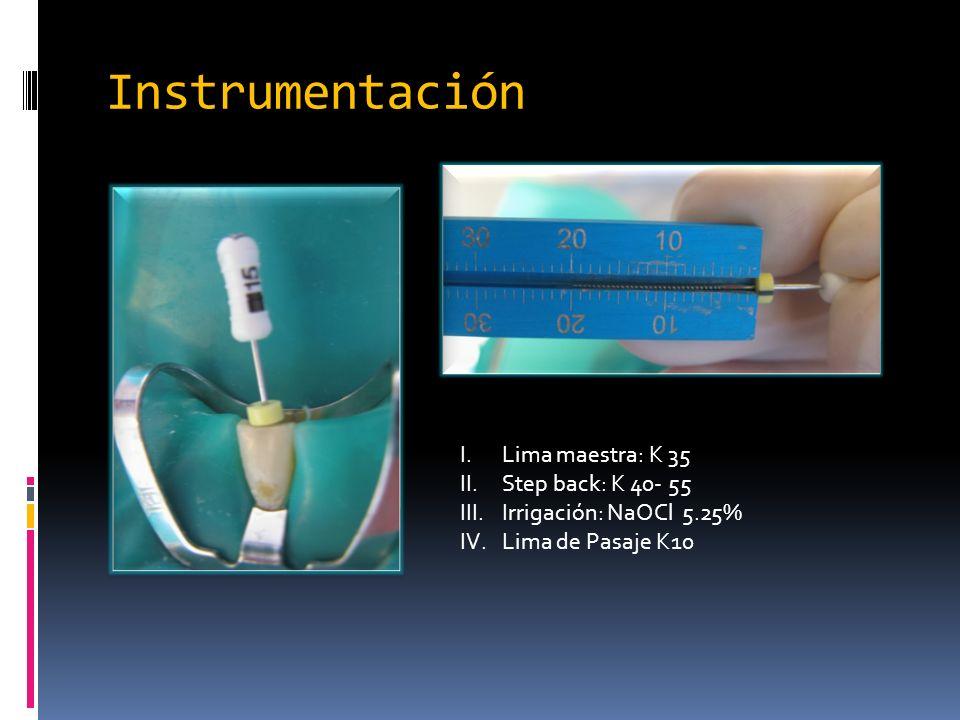 Instrumentación Lima maestra: K 35 Step back: K 40- 55