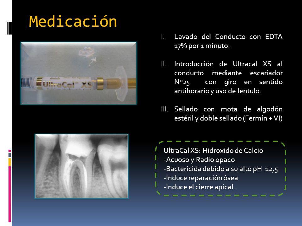 Medicación Lavado del Conducto con EDTA 17% por 1 minuto.