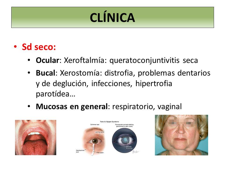 CLÍNICA Sd seco: Ocular: Xeroftalmía: queratoconjuntivitis seca