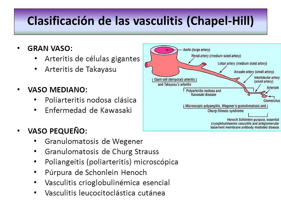 Clasificación de las vasculitis (Chapel-Hill)