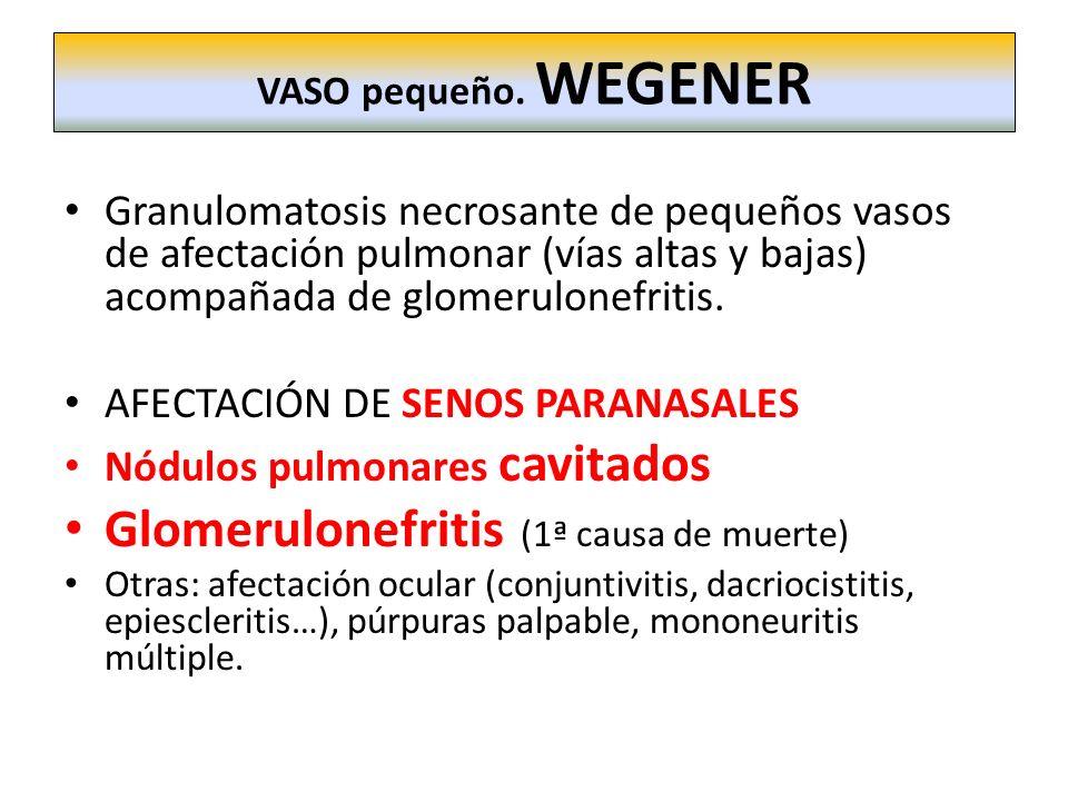 Glomerulonefritis (1ª causa de muerte)