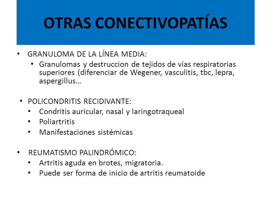 OTRAS CONECTIVOPATÍAS
