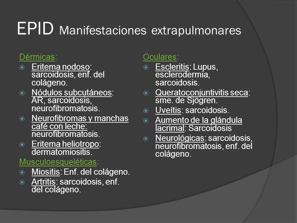 EPID Manifestaciones extrapulmonares