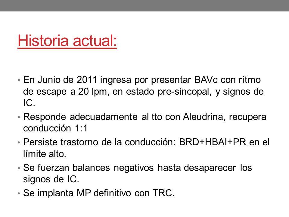 Historia actual: En Junio de 2011 ingresa por presentar BAVc con rítmo de escape a 20 lpm, en estado pre-sincopal, y signos de IC.