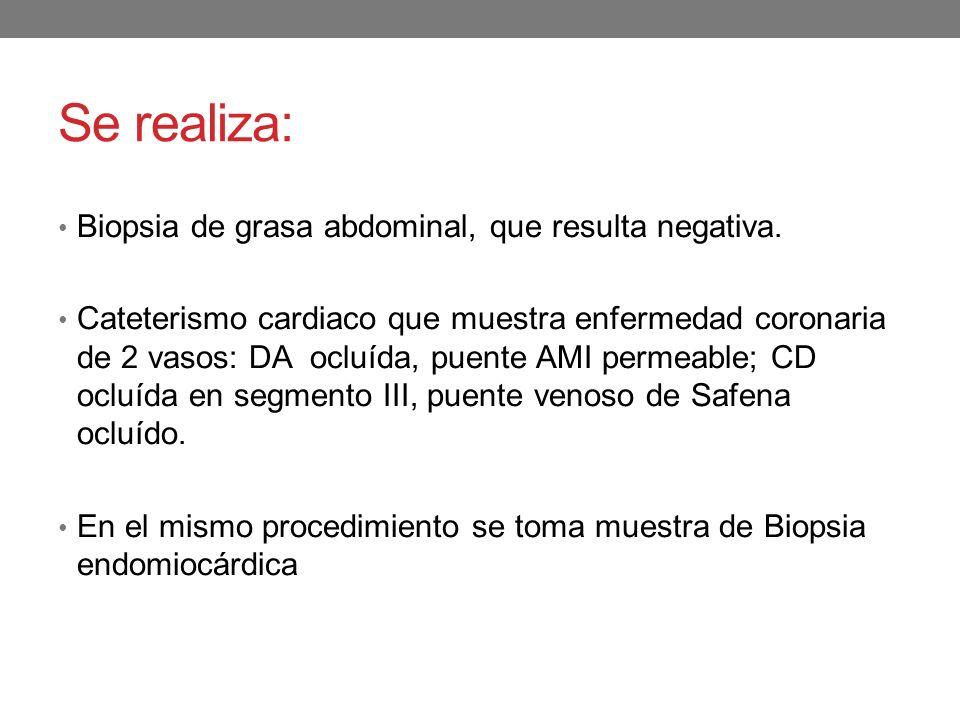 Se realiza: Biopsia de grasa abdominal, que resulta negativa.