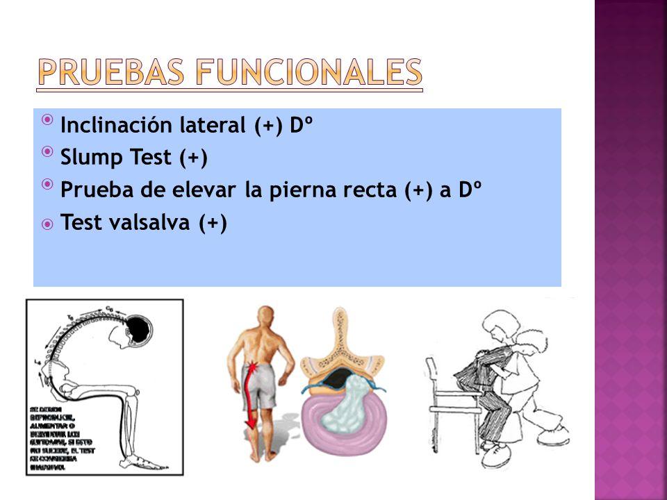 PRUEBAS FUNCIONALES Inclinación lateral (+) Dº Slump Test (+)