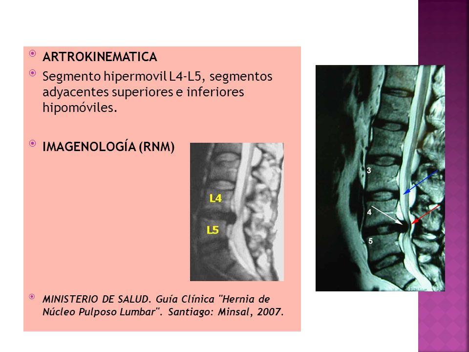 ARTROKINEMATICA Segmento hipermovil L4-L5, segmentos adyacentes superiores e inferiores hipomóviles.