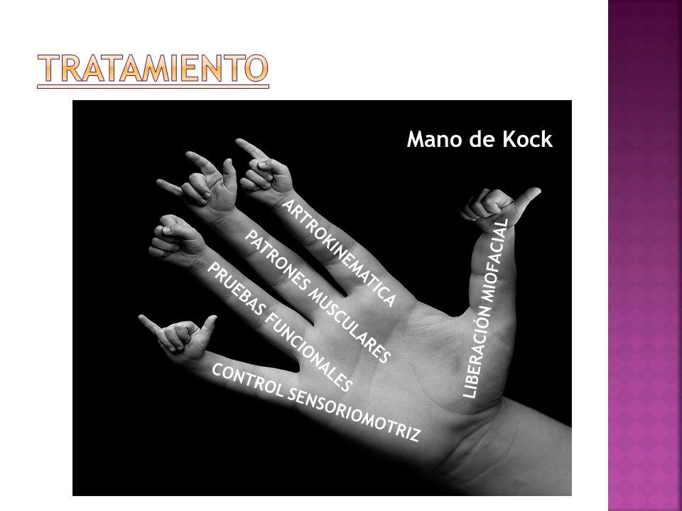 TRATAMIENTO Mano de Kock ARTROKINEMATICA PATRONES MUSCULARES
