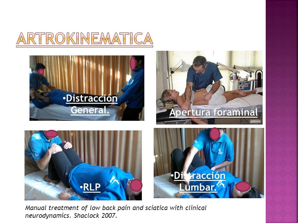 ARTROKINEMATICA Distracción General. Apertura foraminal