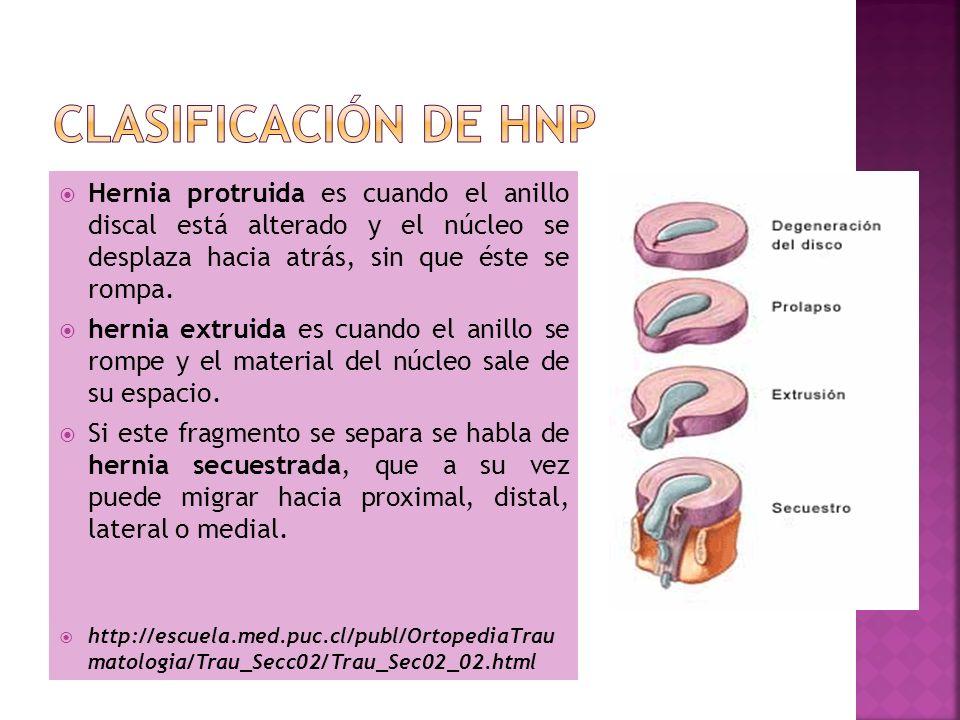 Clasificación de HNP Hernia protruida es cuando el anillo discal está alterado y el núcleo se desplaza hacia atrás, sin que éste se rompa.