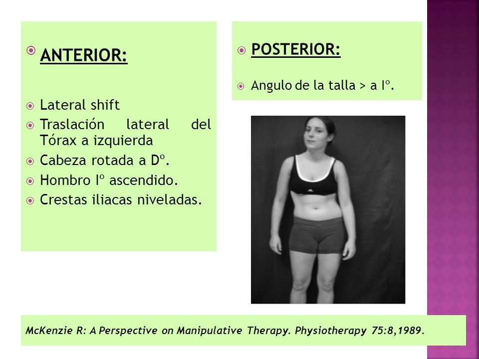 ANTERIOR: POSTERIOR: Lateral shift