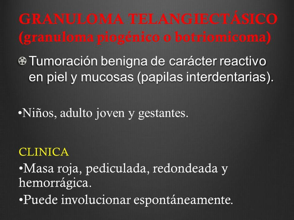 GRANULOMA TELANGIECTÁSICO (granuloma piogénico o botriomicoma)
