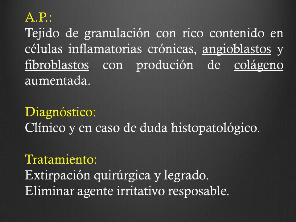 A.P.: Tejido de granulación con rico contenido en células inflamatorias crónicas, angioblastos y fibroblastos con produción de colágeno aumentada.