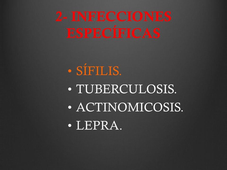 2- INFECCIONES ESPECÍFICAS