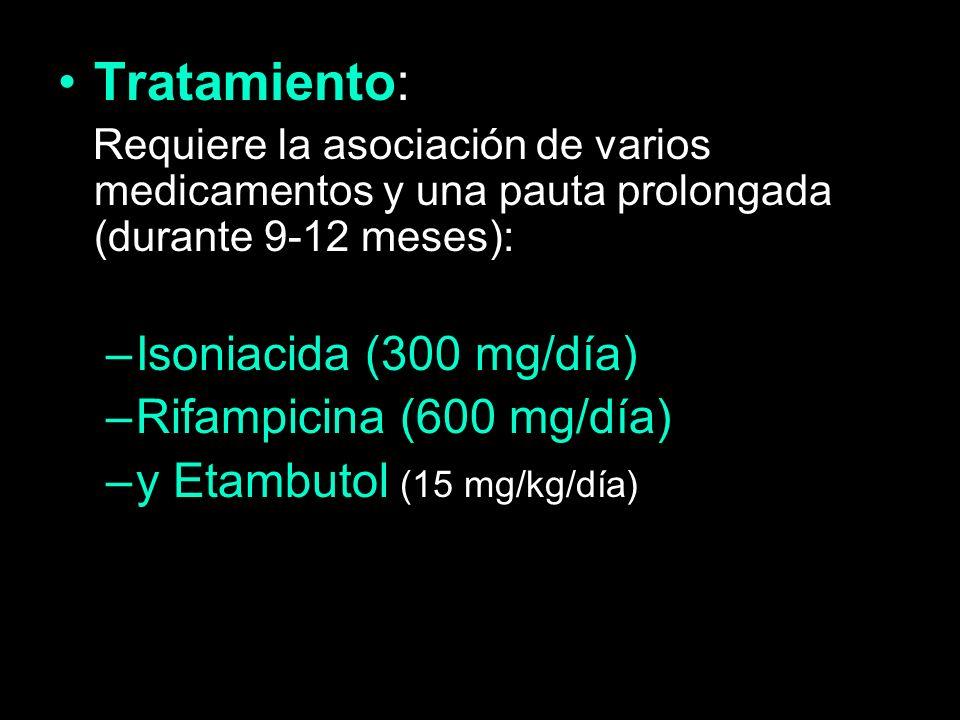 Tratamiento: Isoniacida (300 mg/día) Rifampicina (600 mg/día)