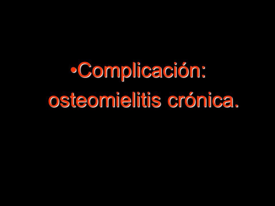 Complicación: osteomielitis crónica.