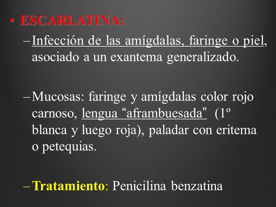 ESCARLATINA: Infección de las amígdalas, faringe o piel, asociado a un exantema generalizado.