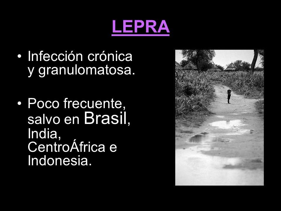 LEPRA Infección crónica y granulomatosa.