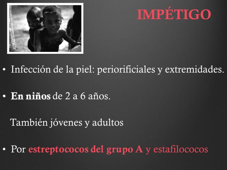 IMPÉTIGO Infección de la piel: periorificiales y extremidades.