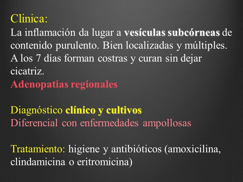 Clinica: La inflamación da lugar a vesículas subcórneas de contenido purulento. Bien localizadas y múltiples.