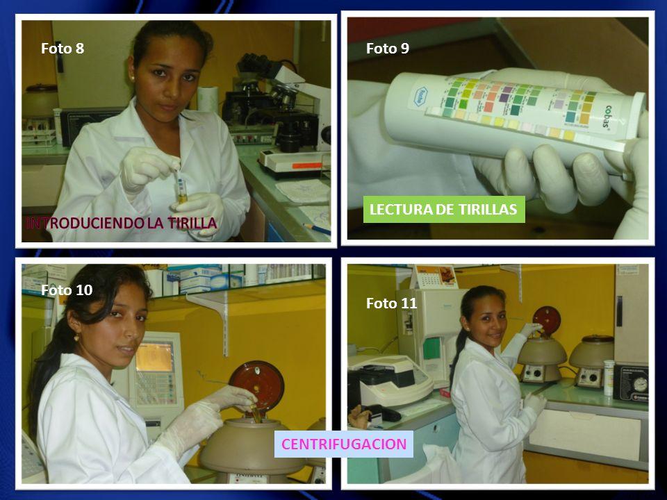 Foto 8 Foto 9 LECTURA DE TIRILLAS INTRODUCIENDO LA TIRILLA Foto 10 Foto 11 CENTRIFUGACION